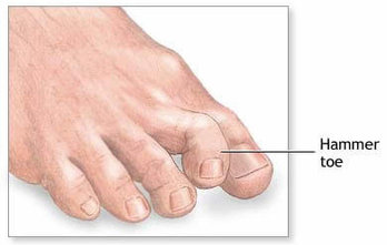 Acton Podiatrist | Acton Hammertoes | MA | Acton Foot and Ankle Associates |