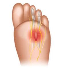 Acton Podiatrist | Acton Morton's Neuroma | MA | Acton Foot and Ankle Associates |