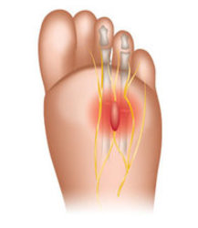 Acton Podiatrist | Acton Morton's Neuroma | MA | Acton Foot and Ankle Associates |