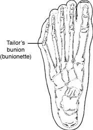 Acton Podiatrist | Acton Tailor's Bunion | MA | Acton Foot and Ankle Associates |