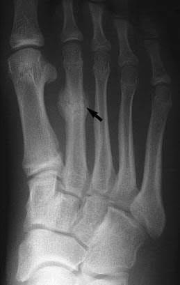 fractures1.jpg
