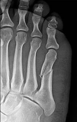 fractures2.jpg