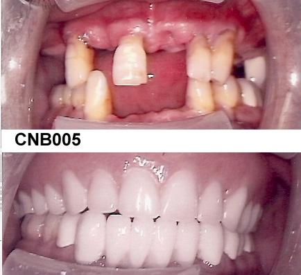 CNB005.jpg
