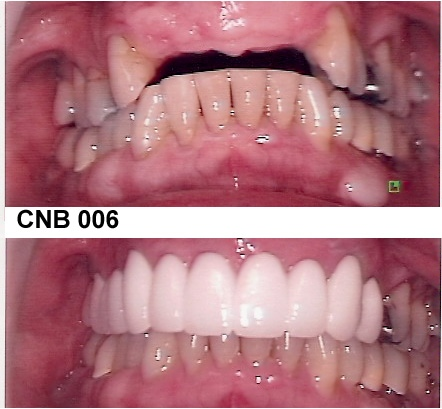 CNB006.jpg