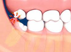 wisdom_teeth.jpg