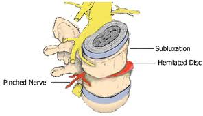 Demorest Chiropractor   Demorest chiropractic What is a Subluxation    GA  