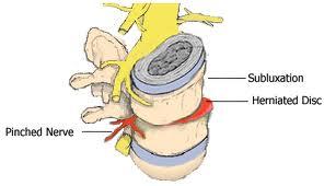 Demorest Chiropractor | Demorest chiropractic What is a Subluxation |  GA |