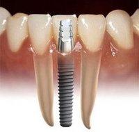 Novi Dentist | Dentist in Novi