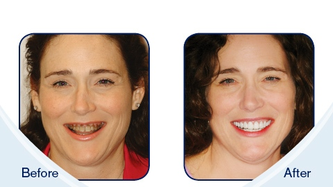Imperial Smile Dentistry in Yorba Linda CA