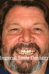 ImperialSmilePatient1before.jpg