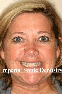 ImperialSmilePatient2before.jpg