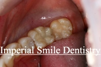 OralPatient1After.jpg