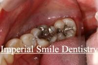 OralPatient1Before.jpg