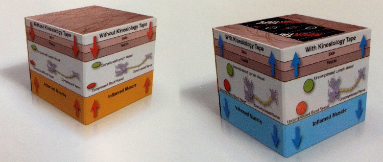 Folsom Chiropractor | Folsom chiropractic Rock Tape |  CA |