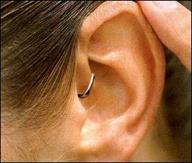 ear_stapling_for_weight_loss.jpg