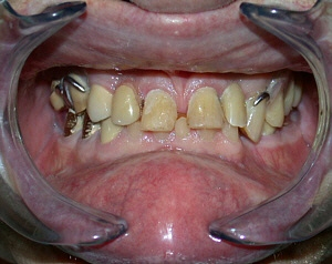 dentures_01.jpg