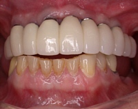 implants02.jpg
