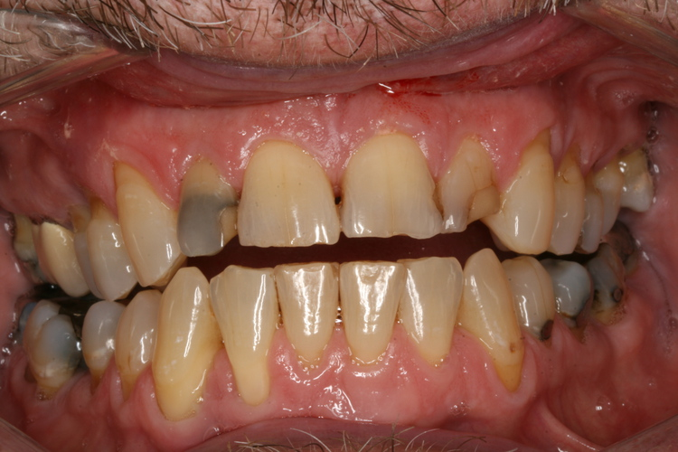 broken_down_anterir_teeth_Gene.JPG