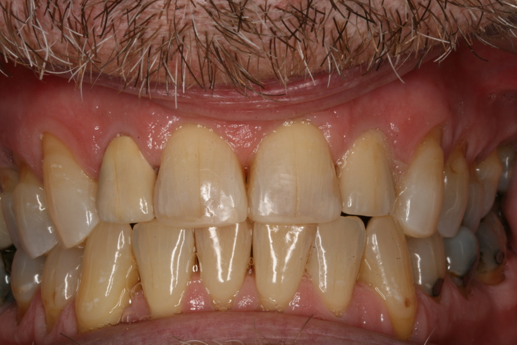 broken_down_teeth_repaired_with_crowns_and_tooth_colored_restorations_Gene.JPG