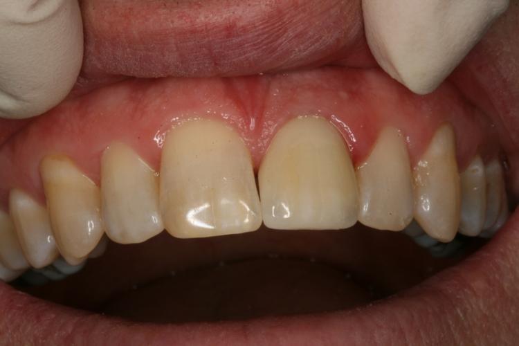 fractured_tooth_repaired_all_ceramic_crown_Kurt.JPG