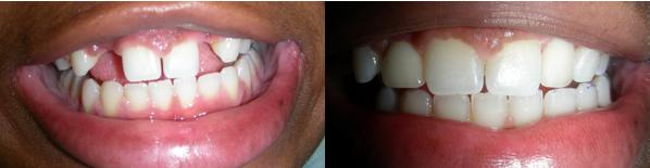 dental_implant4.png