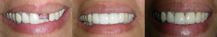dental_implant5.png