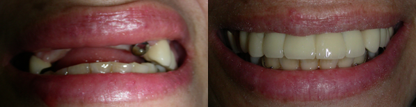 dental_implant6.png