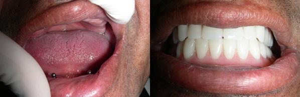 dental_implant7.png