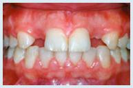 implants_case1a.jpg