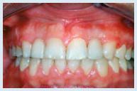 implants_case1b.jpg
