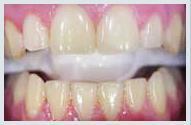 teeth_whitening_case1a.jpg