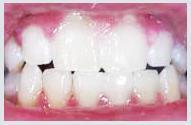 teeth_whitening_case1b.jpg