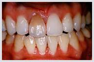 teeth_whitening_case2a.jpg