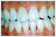 teeth_whitening_case2b.jpg