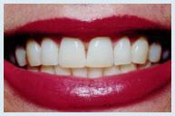 teeth_whitening_case3a.jpg