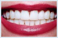 teeth_whitening_case3b.jpg