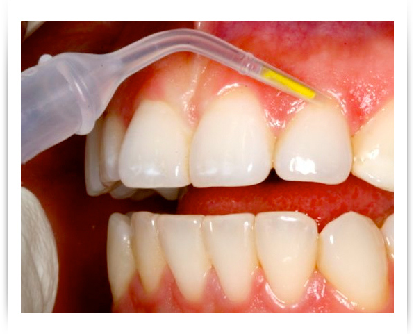 Stratford Dentist, Barnum Dental uses Arestin for treatment of Periodontal Disease