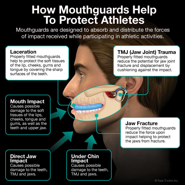 Stratford Dentist Barnum Dental offers the best in Mouthguard protection