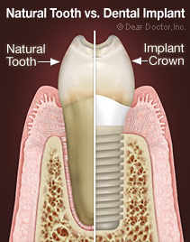 natural_tooth_vs_implant.jpg