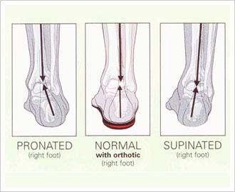 San Juan Capistrano Chiropractor | San Juan Capistrano chiropractic Custom Foot Orthotics |  CA |