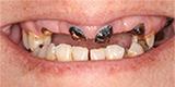 Fine Dentistry of Downtown Orlando in Orlando FL