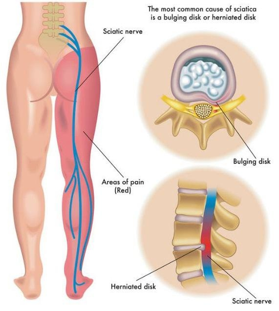 Union Chiropractor | Union chiropractic Sciatica & Leg Pain |  NJ |