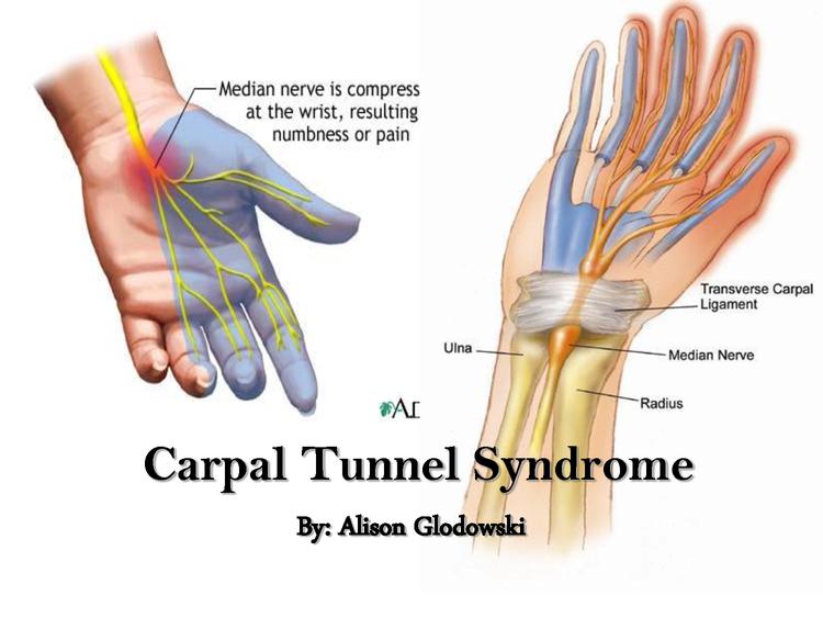Union Chiropractor   Union chiropractic Arm, Shoulder, Wrist Pain & Carpal Tunnel    NJ  