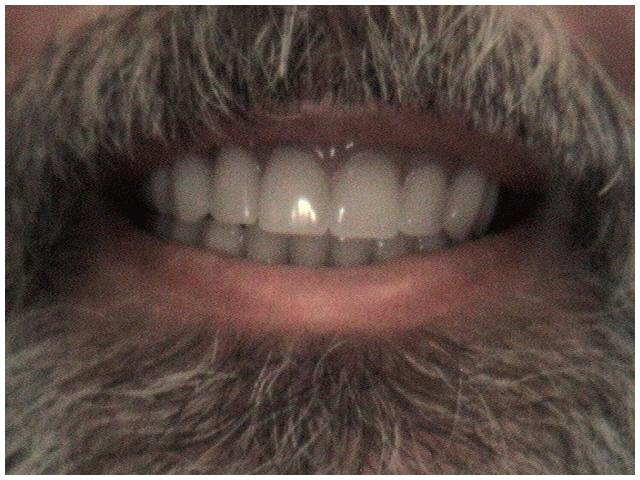 complete_denture_after.JPG