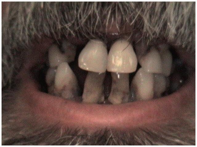 complete_denture_before.JPG