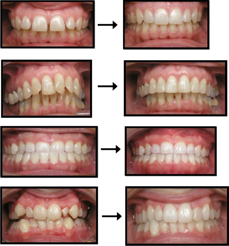 invisalign_before_and_after.png