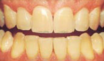teethwhitening1.jpg