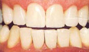 teethwhitening2.jpg