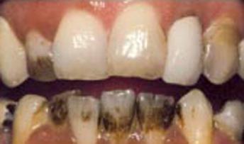 teethwhitening3.jpg