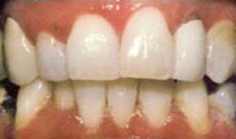 teethwhitening4.jpg